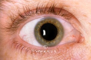 Diabetic eye disease treatment in Chicago